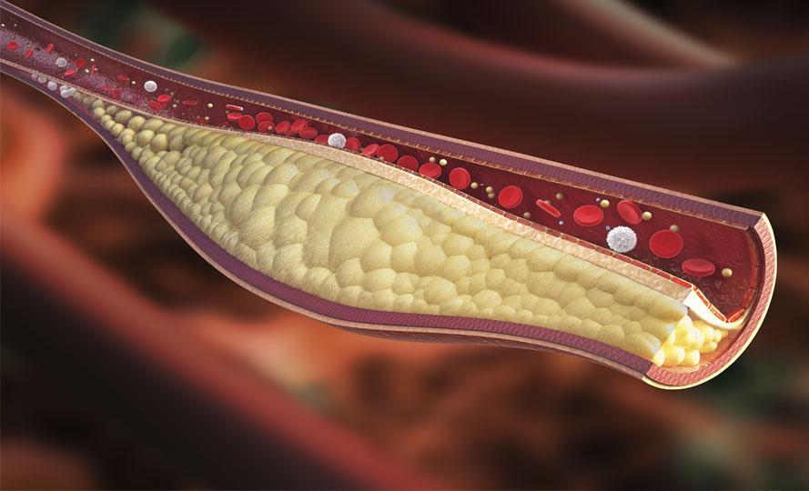 Kolesterol ve kandaki kolesterolü düşürme hakkında